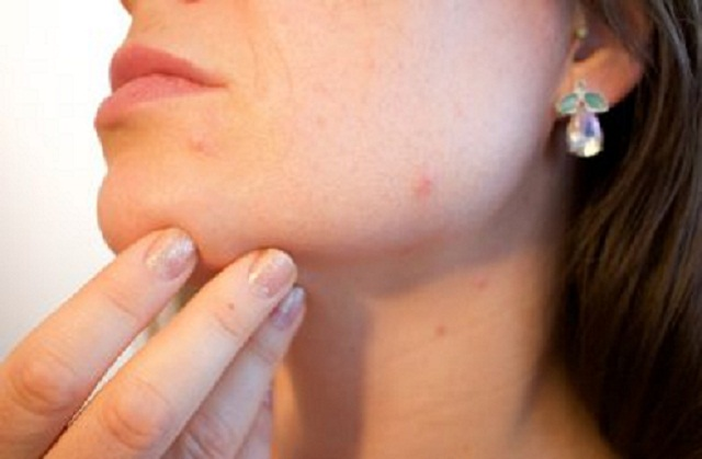Probiotics Linked To Fight Acne